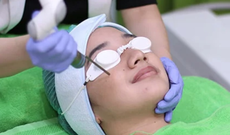 ZAP PHOTO FACIAL